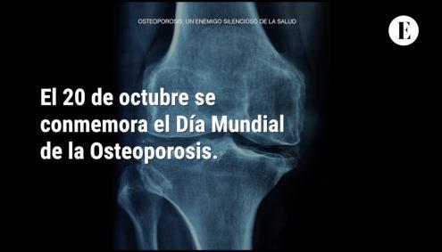 Osteoporosis, un enemigo silencioso de la salud