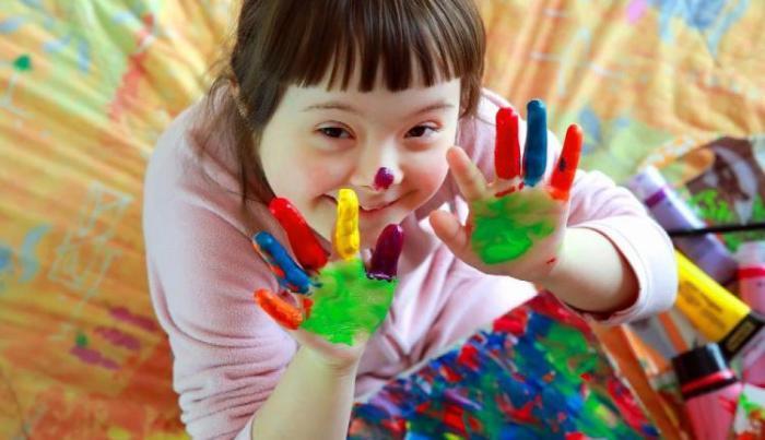 Síndrome de Down, parteaguas en estudios genéticos y diagnóstico temprano