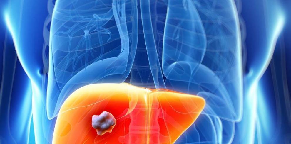 Descubren vía para frenar cáncer de hígado