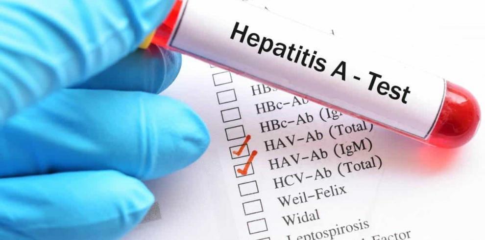 Costa Rica detecta 24 casos de hepatitis A, pero descarta brote