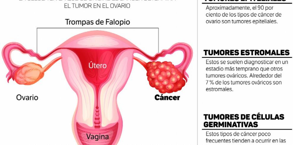 Cancer de colon mujer joven. Cancer de colon mujer joven, Tag posts on Instagram