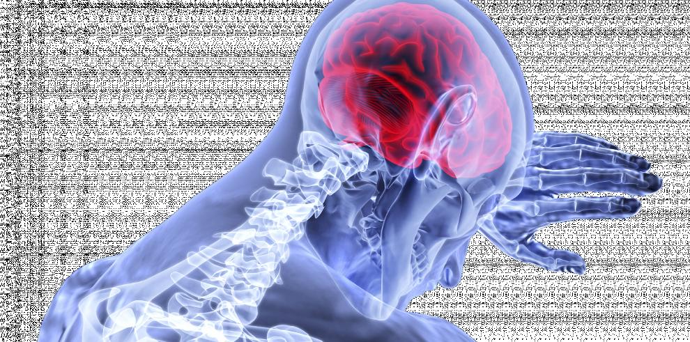 Tratamiento de células madres, una alternativa para los accidentes cerebrovasculares
