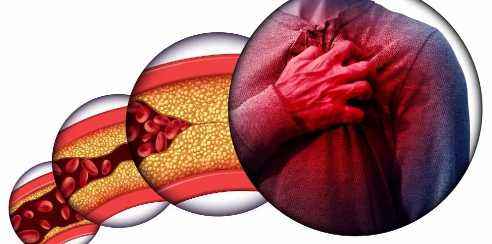 Grasas trans, un problema doble para la salud del corazón