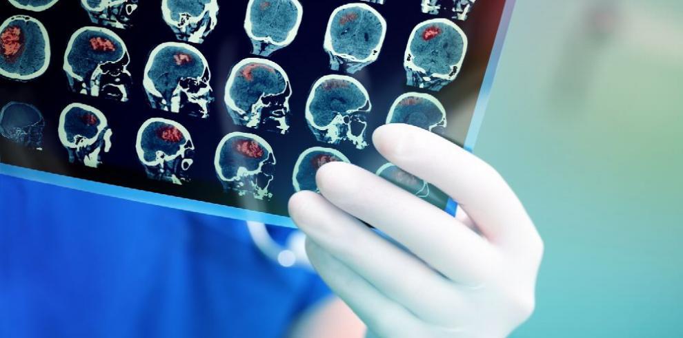 Desequilibrio del pH en el cerebro causaría alzhéimer