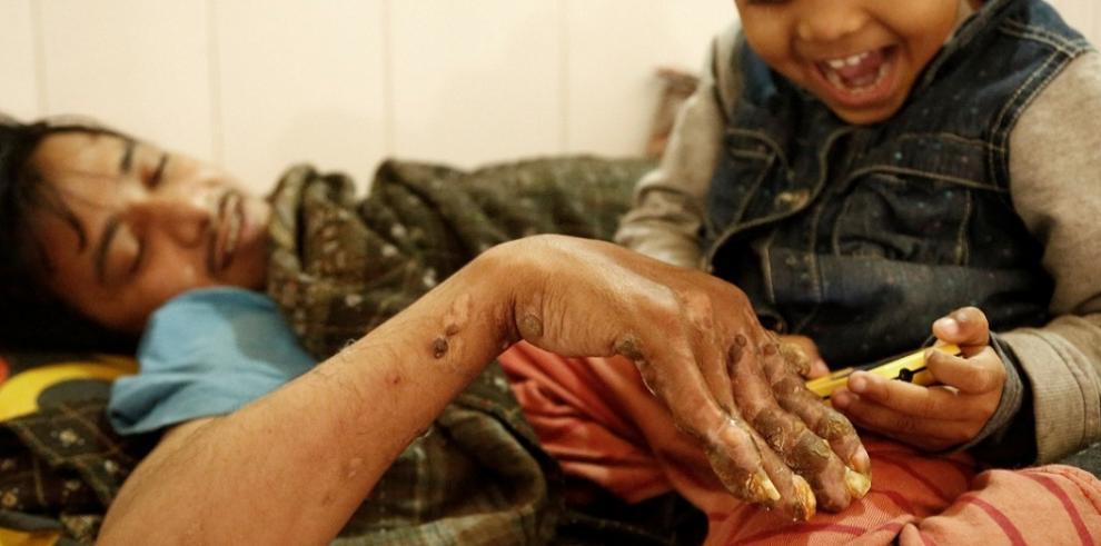 El 'hombre árbol', dos años atrapado en un hospital de Bangladesh