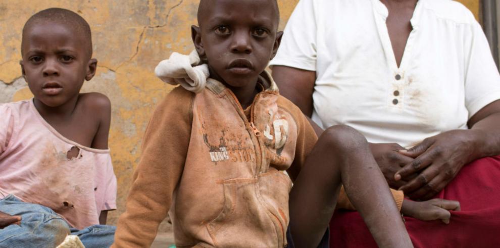 Al pequeño Enock la tuberculosis le quitó el habla
