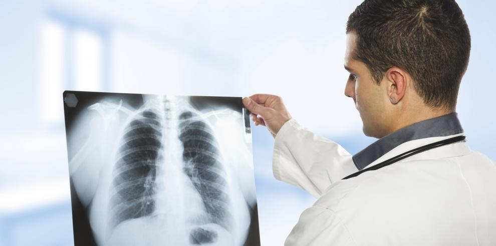 OMS plantea hoja de ruta para reducir en 90 % las muertes por tuberculosis