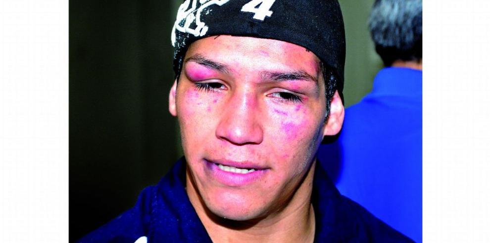 Reaparece hoy 'Tyson' Márquez en México