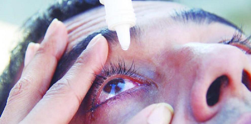 Minsa reitera tomar medidas de higiene para evitar la conjuntivitis
