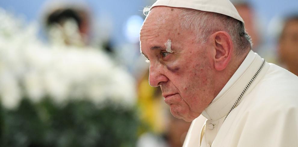 Papa sufre ligero golpe en la cara durante su visita a Cartagena