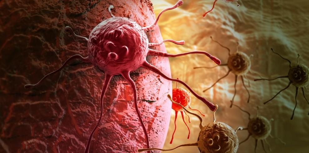 Más de 100 mil nuevos pacientes de cáncer diagnosticadosen Taiwan