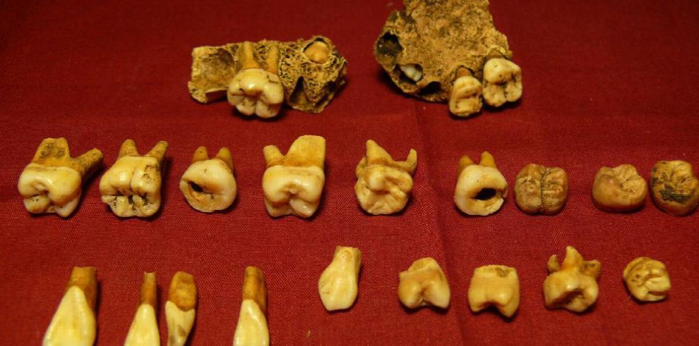 Antropología forense, una ciencia que agoniza