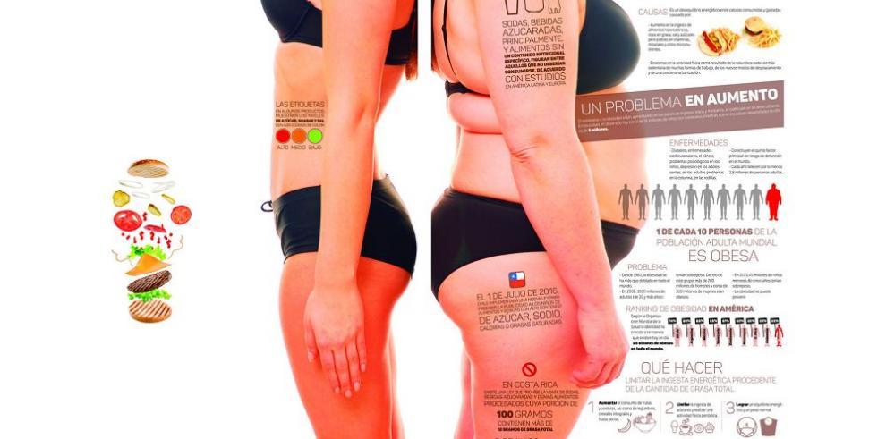 Las políticas mundiales contra la obesidad