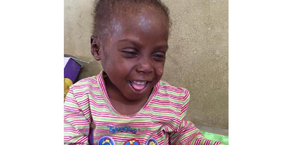 La increíble recuperación de Hope, el 'niño brujo' de Nigeria