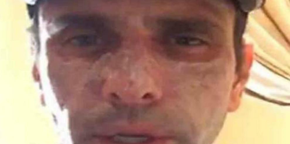 Líder opositor Capriles atendido en EEUU de lesiones en la cara