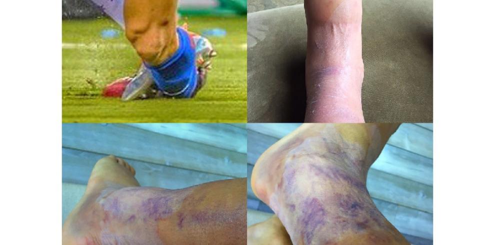 Así quedó el tobillo de Alexis Sánchez, después de la final