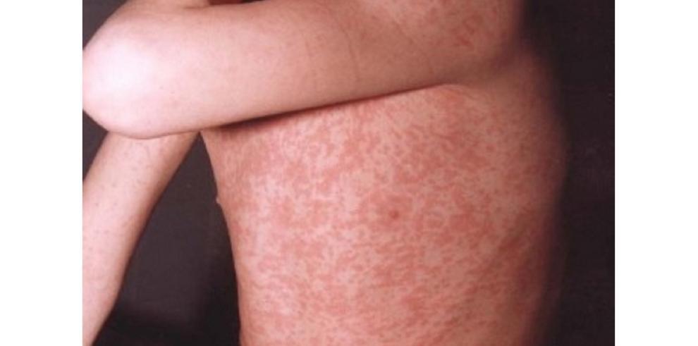 El sarampión causa la primera muerte en EE.UU. en más de una década