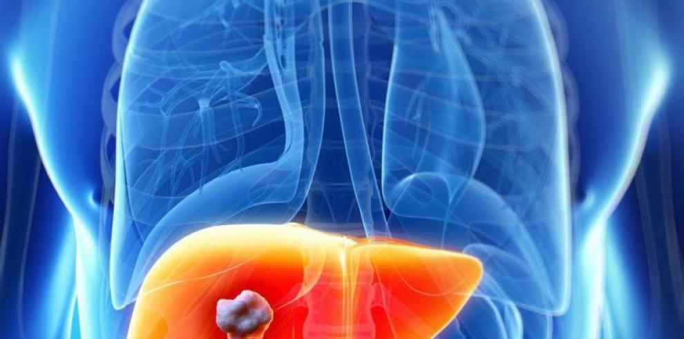 Científicos logran detectar el cáncer de hígado usando una bacteria
