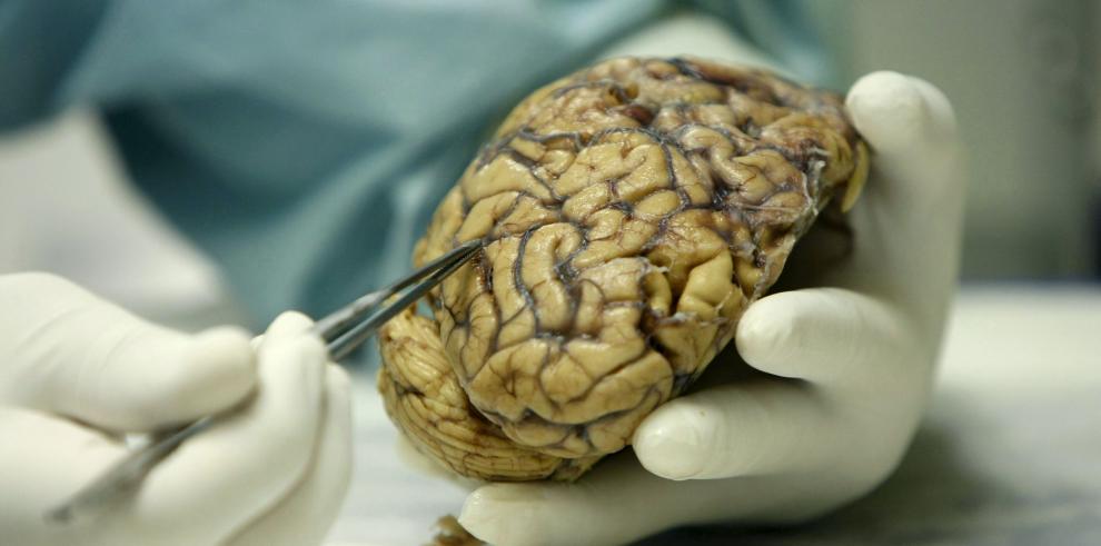 El coeficiente de inteligencia depende del grosor de la corteza cerebral