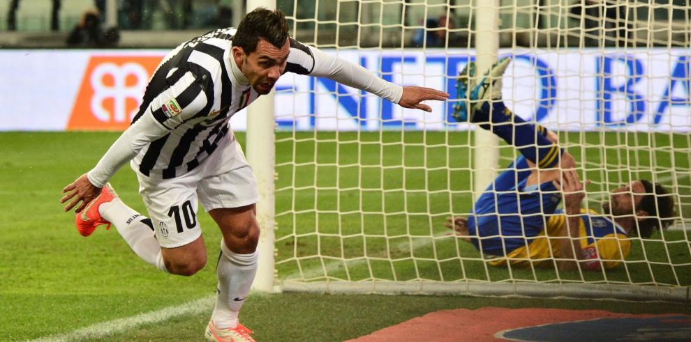 Juventus va en busca del título ante Napoli