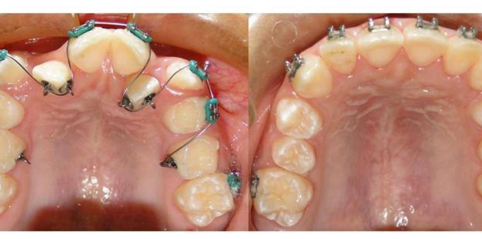 Médico panameño alivia enfermedades desconocidas desde la dentadura